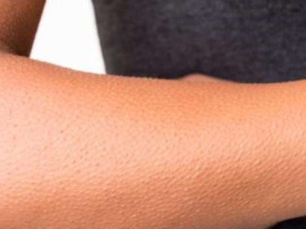 اسباب جلد الوزة