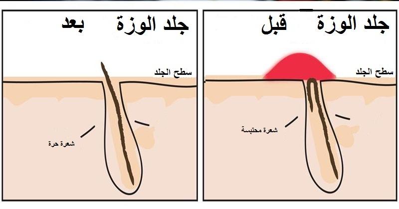 جلد الوزة والليزر