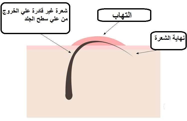 علاج جلد الوزة بالليزر