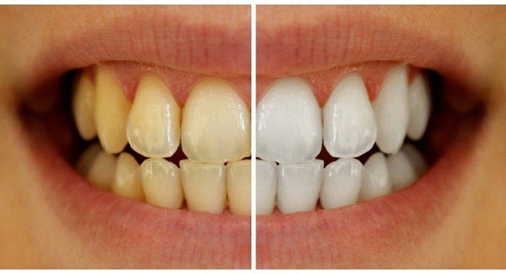 قشر البرتقال علاج من الجير الأسنان