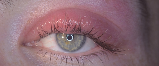 التهابات جفن العين