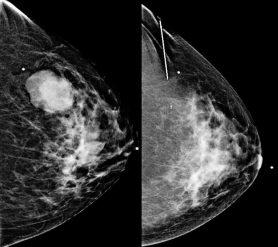 سونار سرطان الثدي