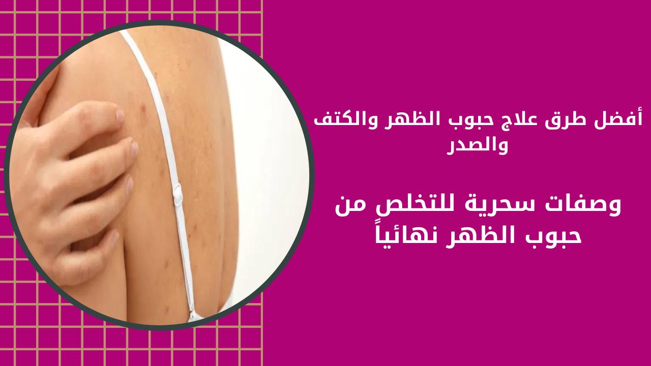 أفضل طرق علاج حبوب الظهر والكتف والصدر