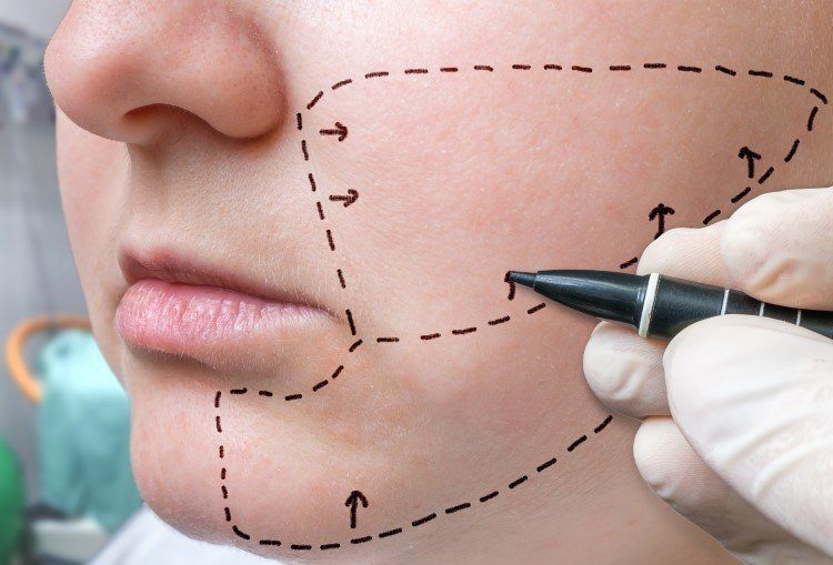 عملية شفط الدهون من الوجه